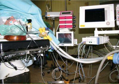 EEG-Narkoseüberwachung